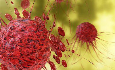 b-17 Therapie bei Krebs - Krebszelle